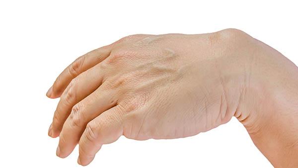 Docteur Vladimir MITZ chirurgien Paris 6 75006 chirurgie esthetique chirurgie des mains Traitement des kystes