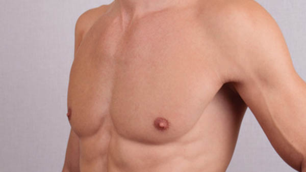 Docteur Vladimir MITZ chirurgien Paris 6 75006 chirurgie esthetique chirurgie du corps chirurgie des seins Gynecomastie homme