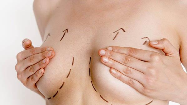 Docteur Vladimir MITZ chirurgien Paris 6 75006 chirurgie esthetique chirurgie du corps chirurgie des seins Asymétrie mammaire