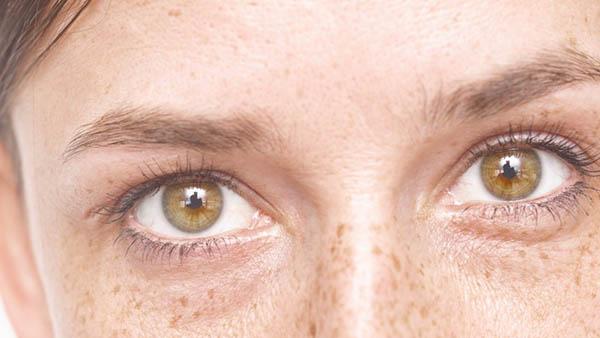 Docteur Vladimir MITZ chirurgien Paris 6 75006 chirurgie esthetique chirurgie du visage oeil paupieres blepharoplastie