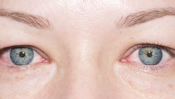 Docteur Vladimir MITZ chirurgien Paris 6 75006 chirurgie reparatrice Chirurgie du visage Traitement des pathologies de l œil et des paupieres
