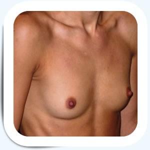Docteur Vladimir MITZ chirurgien Paris 6 75006 photos avant apres augmentation mammaire avant