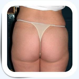 Docteur Vladimir MITZ chirurgien Paris 6 75006 photos avant apres liposuccion apres