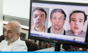 3è geeffe du visage pour un patient atteint de neurofibromatose faciale