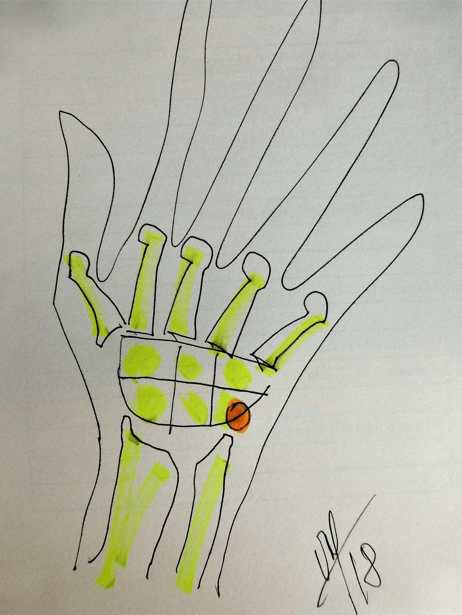 chirurgie de la main chirurgie reparatrice pisiforme