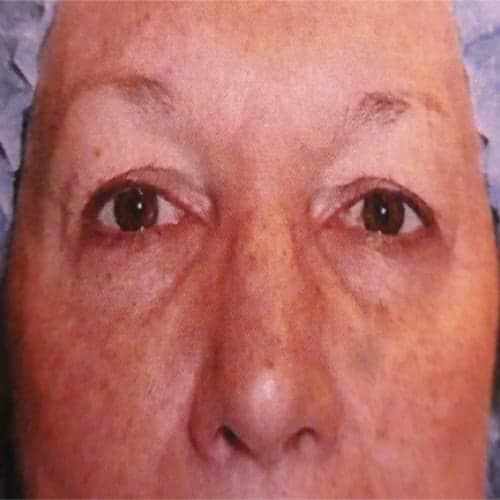 chirurgie de la paupiere avant apres chirurgie de la paupiere paris blepharoplastie paris docteur vladimir mitz chirurgien esthetique 75006 chirurgien esthetique paris 6
