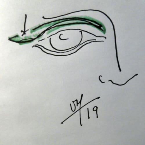 paupiere dessin 2019 chirurgie de la paupiere paris blepharoplastie paris docteur vladimir mitz chirurgien esthetique 75006 chirurgien esthetique paris 6