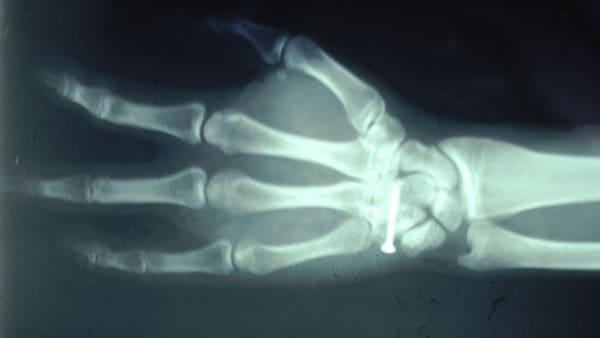 amputation doigt amputation digitale doigt coupe chirurgie reparatrice docteur vladimir mitz chirurgien esthetique paris 6 chirurgien esthetique saint germain