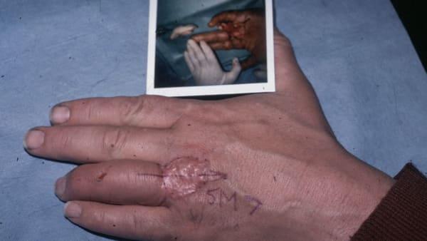 amputation doigt amputation digitale doigt coupe chirurgie reparatrice docteur vladimir mitz chirurgien esthetique paris 6