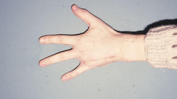 amputation doigt amputation digitale doigt coupe chirurgie reparatrice docteur vladimir mitz chirurgien plasticien paris 6