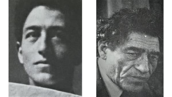giacometti avant apres vieillissement visage docteur vladimir mitz chirurgien esthetique paris 6