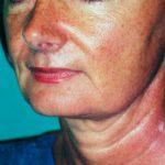 lifting cervico facial avant docteur mitz chirurgien plasticien paris