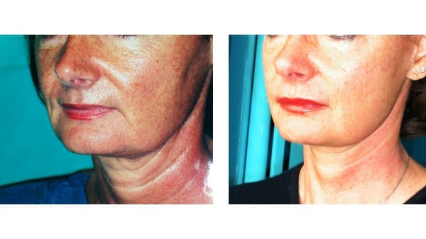 lifting cervico facial docteur mitz lifting du visage avant apres complications