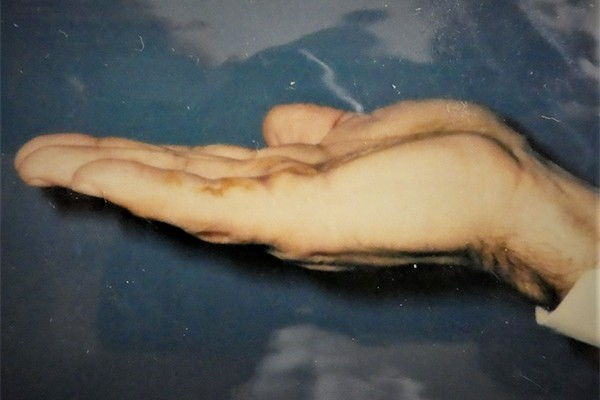 Avant apres traitement de dupuytrennodule douloureux paume de la main maladie de dupuytrencontracture Docteur Vladimir mitz chirurgien esthetique paris 6