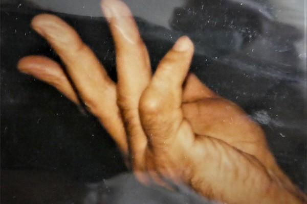 Retraction de la maladie de dupuytren cause du nodule paume main dupuytren Docteur Vladimir mitz chirurgien esthetique paris 6