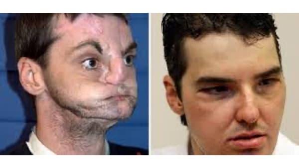chirurgie reparatrice allogreffe visage main greffe visage avant apres docteur vladimir mitz chirurgien esthetique paris 6