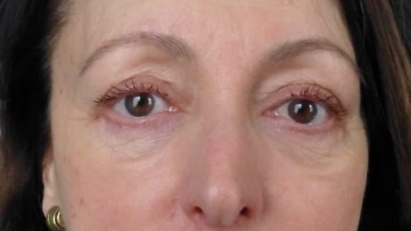 poches yeux ridules coin yeux cernes docteur vladimir mitz operation yeux chirurgien esthetique paris 6